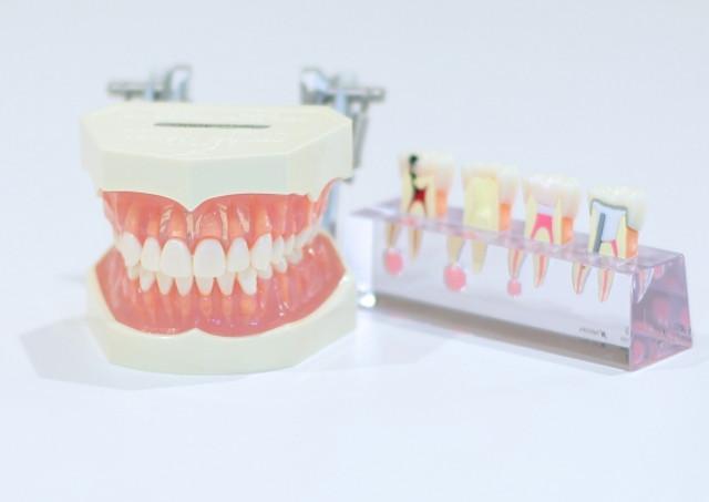 歯科技工士は需要が途絶えない職種
